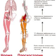 Ортопедические стельки Быкова 36–38 4